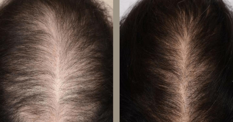 「ワクチン打ったらハゲた!?」20代女性でもハゲた!?若い女性の方がハゲやすい真実!抗がん治療中の患者に唯一使用が許可されている天然オーガニック成分のみの育毛剤から4000年の歴史ある発毛漢方薬。最先端の毛髪再生医療まで徹底解説!